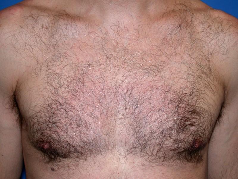 Laser Hair Removal Cochane Hair Free Laser Institute